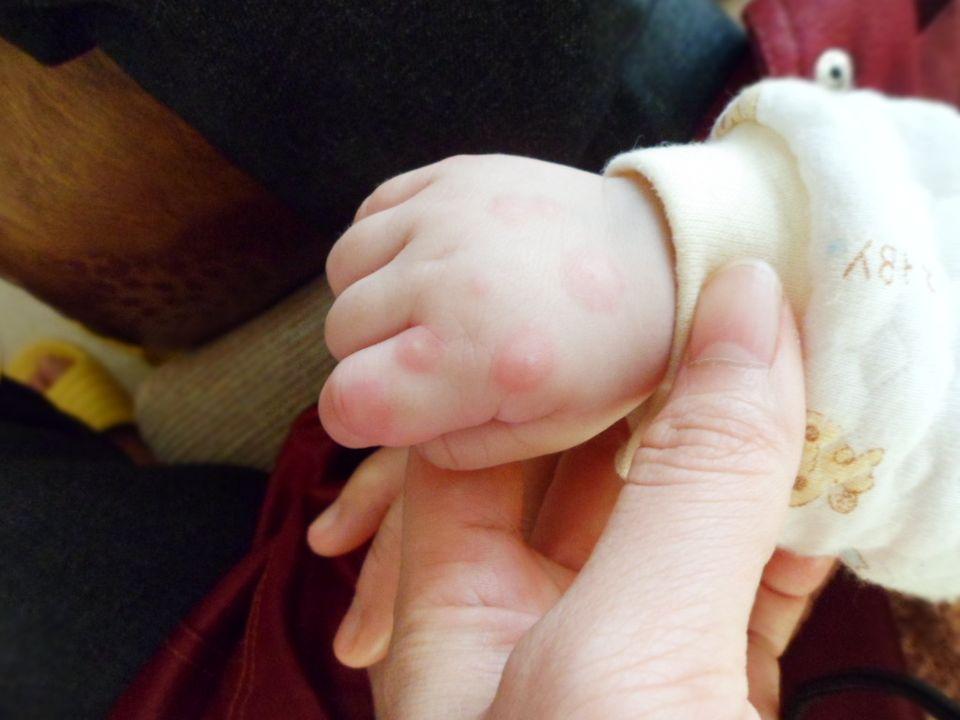 手足口病怎么治疗