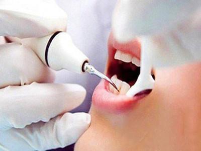 牙龈萎缩怎么办 如何预防牙龈萎缩