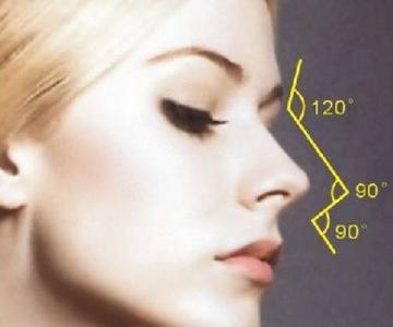 怎么做假体隆鼻植入切口在哪
