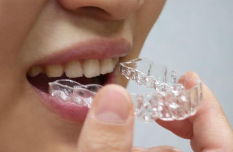 牙齿矫正后不能吃什么