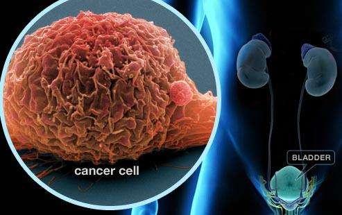 缺乏维生素D或可增加个体患膀胱癌的风险