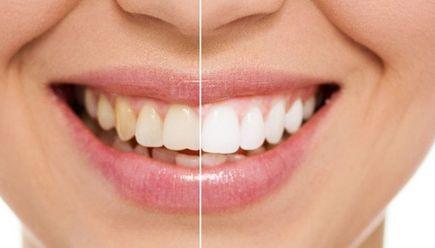 牙齿种植的材料有哪些