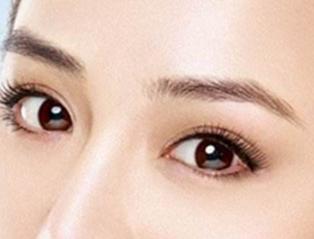 韩国埋线双眼皮的术后护理