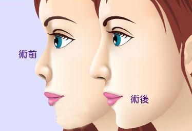 无锡注射隆鼻优点有哪些