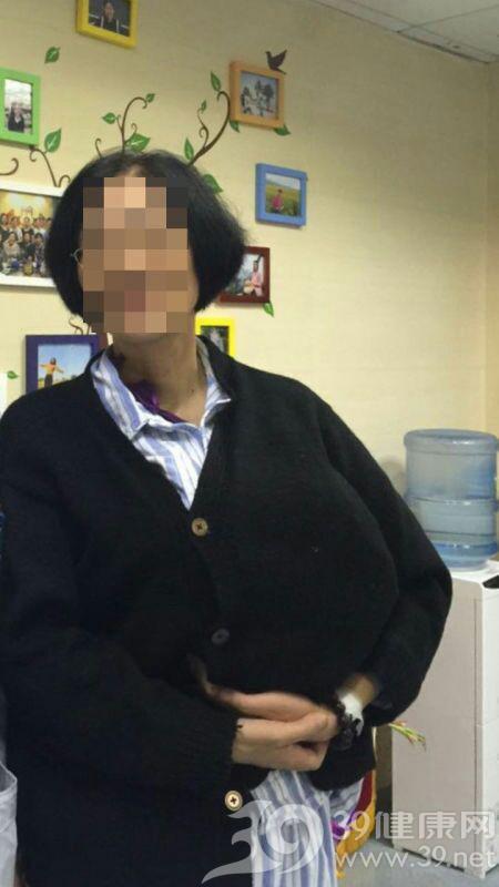北京医院甲状腺乳腺与疝外科切除国内最大乳腺肿瘤