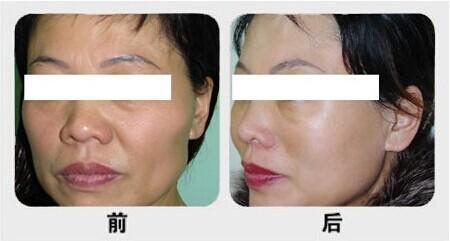 北京延世医疗美容医院收费怎么样贵不贵