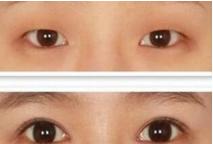割双眼皮的照片 对比案例