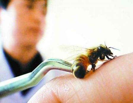 春季蜜蜂多 发生蜜蜂蛰后如何处理