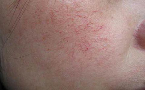 面部红血丝的原因 如何去除红血丝