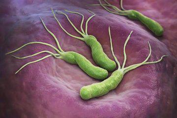 用生物科技,开创无副作用清除幽门螺杆菌新途径