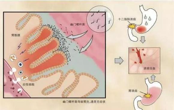 关于幽门螺杆菌的研究,又有了新的发现