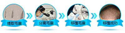 中德毛发移植整形医院徐霞博士科普头发如何种植?