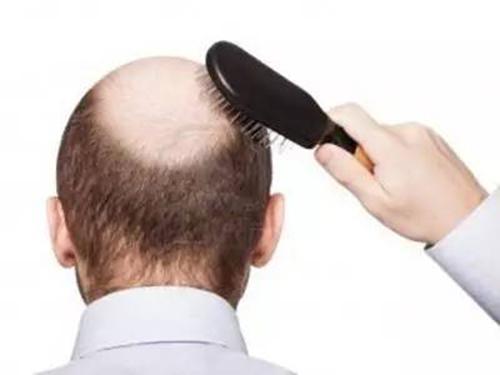 植发2年后头发都掉了,在中德重获新生!