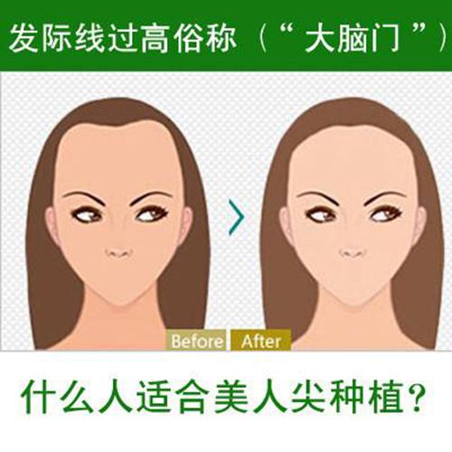 北京中德植发:发际线往前一小步,脸变小一大圈!