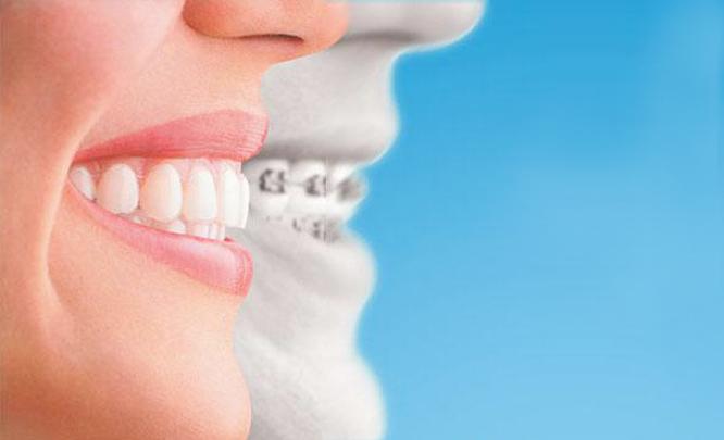 青岛治疗牙齿不齐,牙齿矫正需要多少钱