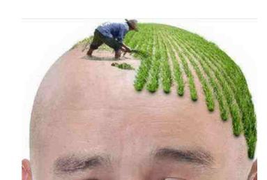 中德毛发移植:种植头发须知三件事原理+价格+效果