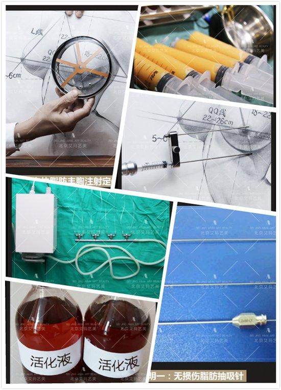 韦元强的专利自体脂肪移植术有哪些专利发明呢?
