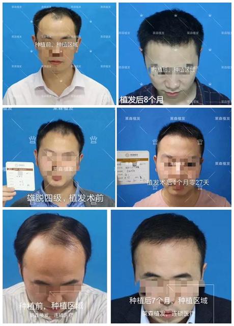 植发对比3拼07.jpg