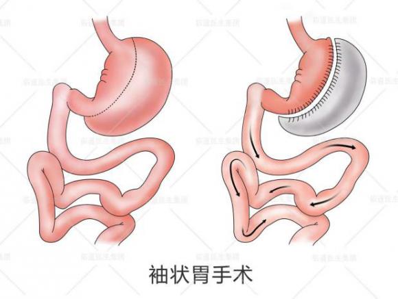吴良平:糖尿病手术,哪种术式更好?