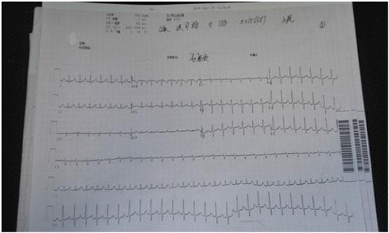 河北首例零射线顽固持续房速射频消融术成功在河北燕达医院实施