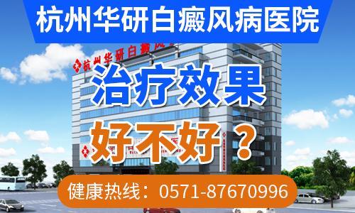 杭州华研白癜风医院技术怎么样 诊疗靠谱百姓放心