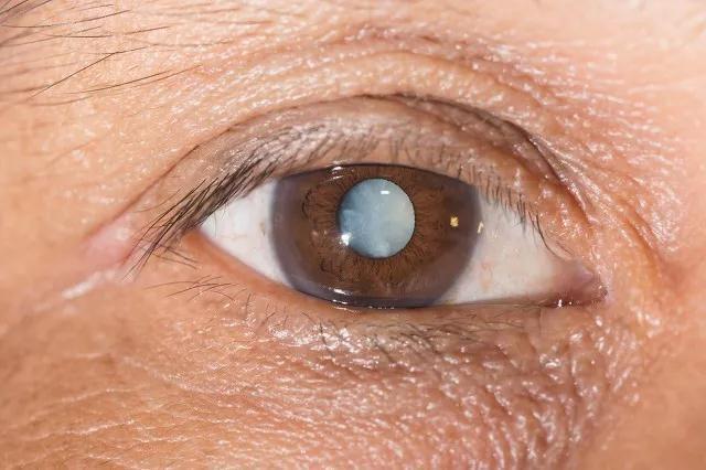 昆明普瑞眼科:年轻时做了近视手术,老了还能做白内障手术吗?
