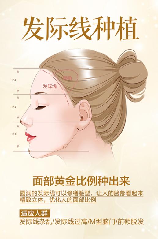 美人尖在发际线的设计-星美植发