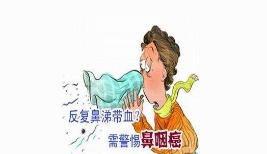 鼻咽癌1.jpg
